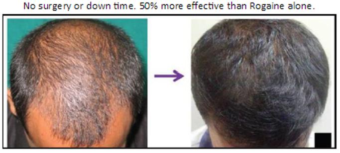 hair growth tampa